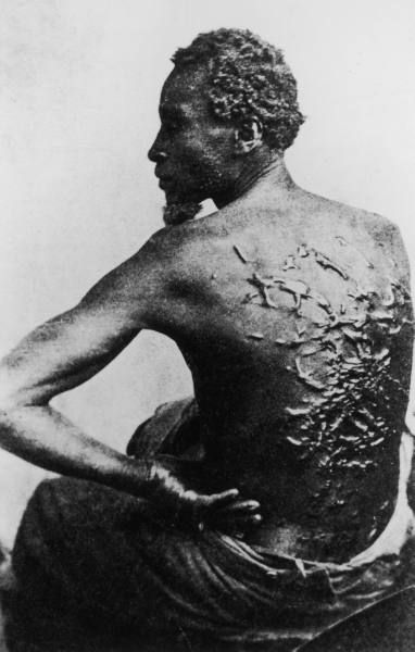 Flogged slave showing his wounds, 1863