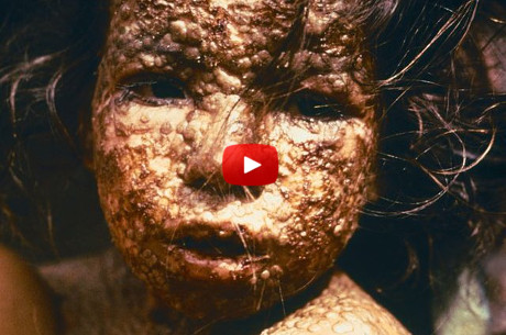10-deadliest-diseases-human-history
