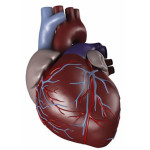"""Brazilian Cardiologist: """"The Public Is Largely Unaware Of The True Cause of Heart Attacks"""""""