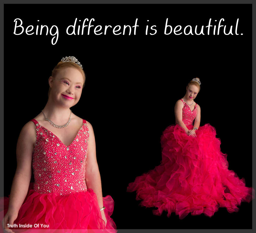 Being different is beautiful.