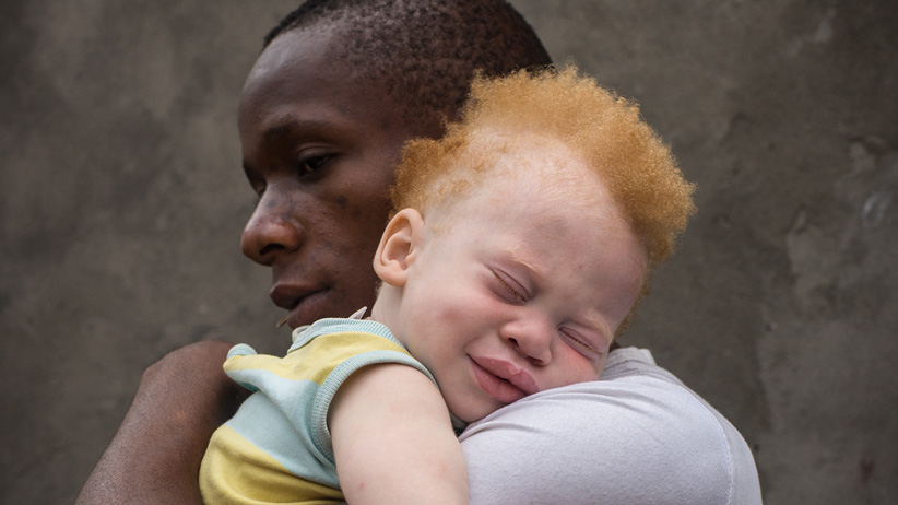 Albinism A unique disorder beyond Race and Ethnicity.