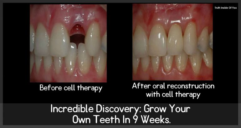 Incredible Discovery: Grow Your Own Teeth In 9 Weeks.