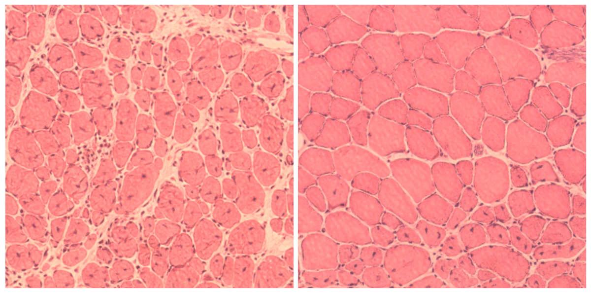 Cellular Aging