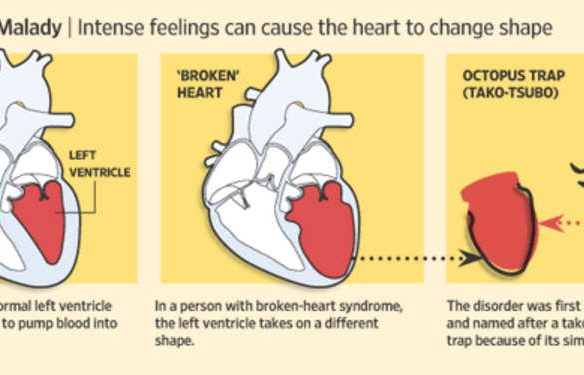 the broken heart analysis The broken heart john donnes' poem the broken heart is full of imagery, used to portray his broken heart donne uses the imagery so we can get a visual picture of what love means to him.