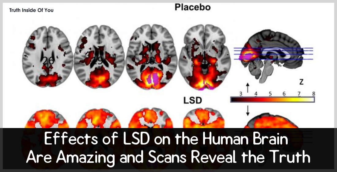 Effects of LSD on the Human Brain Are Amazing and Scans Reveal the Truth