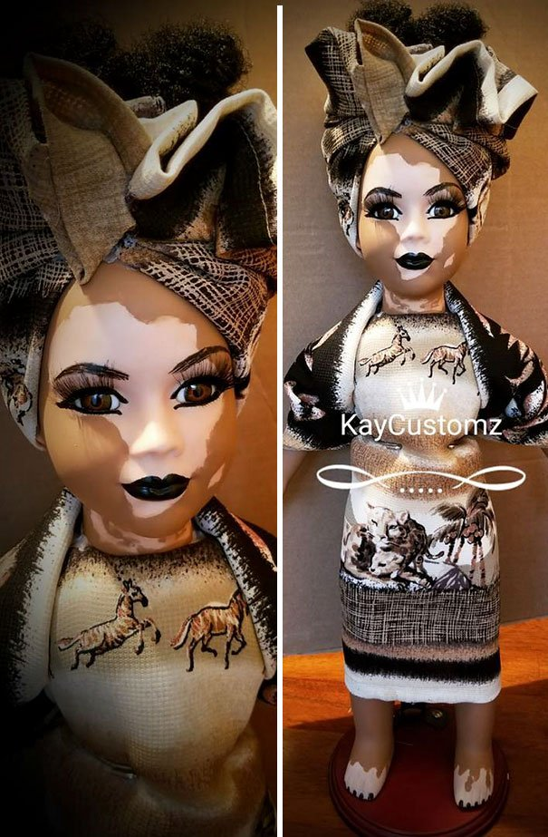 Dolls With Vitiligo-2