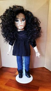 Dolls With Vitiligo-3