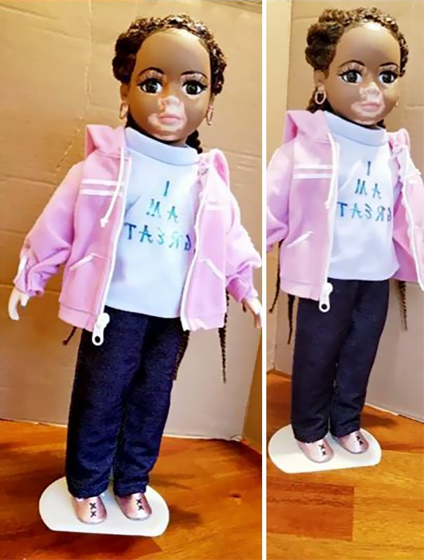 Dolls With Vitiligo-5