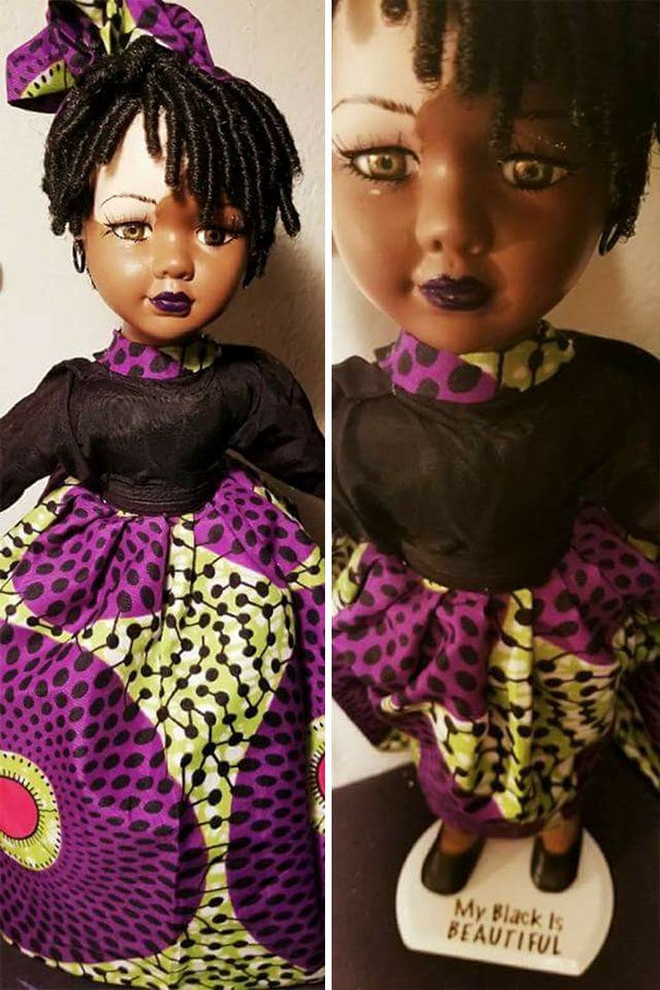 Dolls With Vitiligo-6