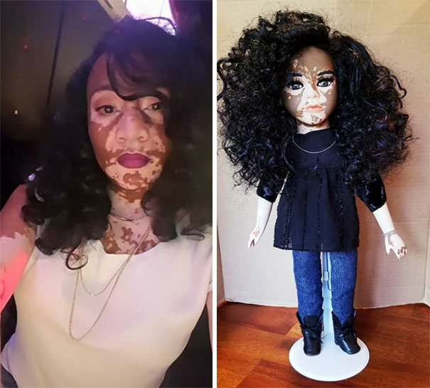 Dolls With Vitiligo-9