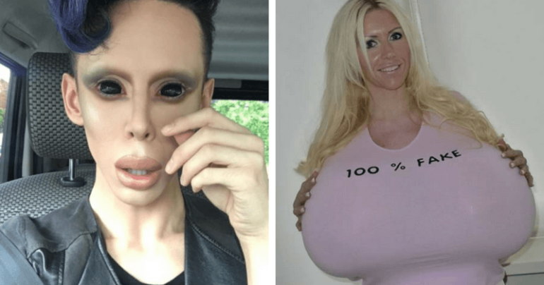 11 of the Most Disturbing Body Parts That People Acquired After Plastic Surgery