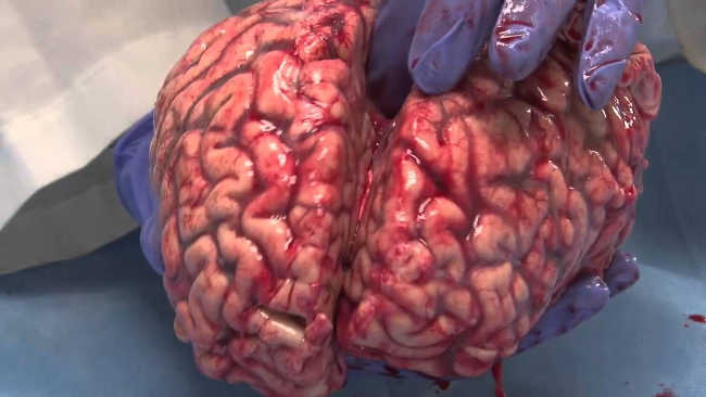 Freshly Removed Human Brain