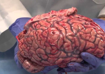 This Video of a Freshly Removed Human Brain Is Strangely Mesmerizing