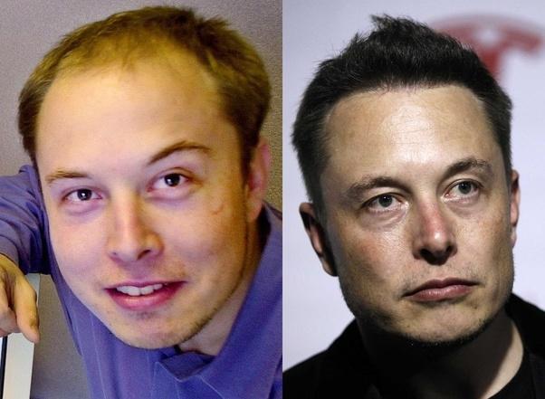 1. Elon Musk