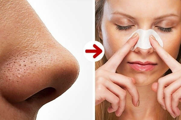 5. Uprooting blackheads