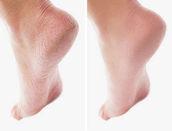 8. Gentle heels