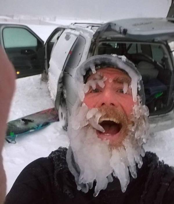 7. Icy beard